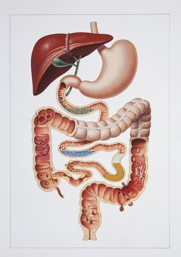 Stock Photo: 1788-39695 Medicine: Human anatomy, digestive system, the main causes of diarrhea