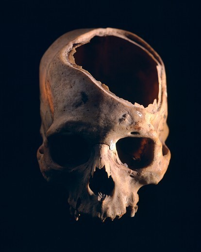Stock Photo: 1788-40989 Skull showing the trepanation practiced by the Indians, from Peru. Pre-Inca Paracas Civilization, 6th Century BC.