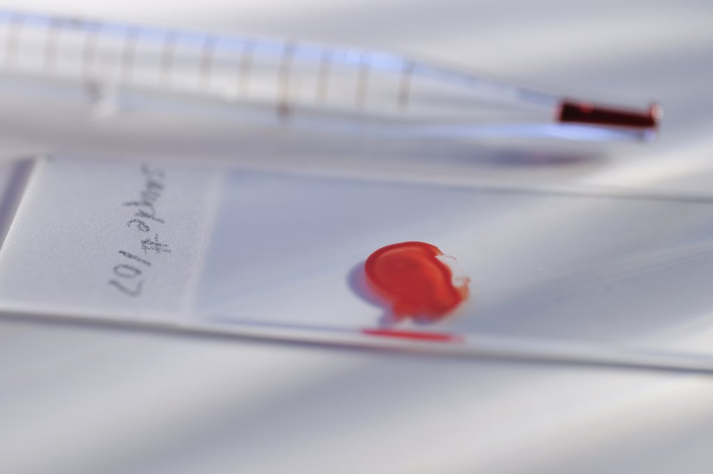 Drop of blood on slide : Stock Photo