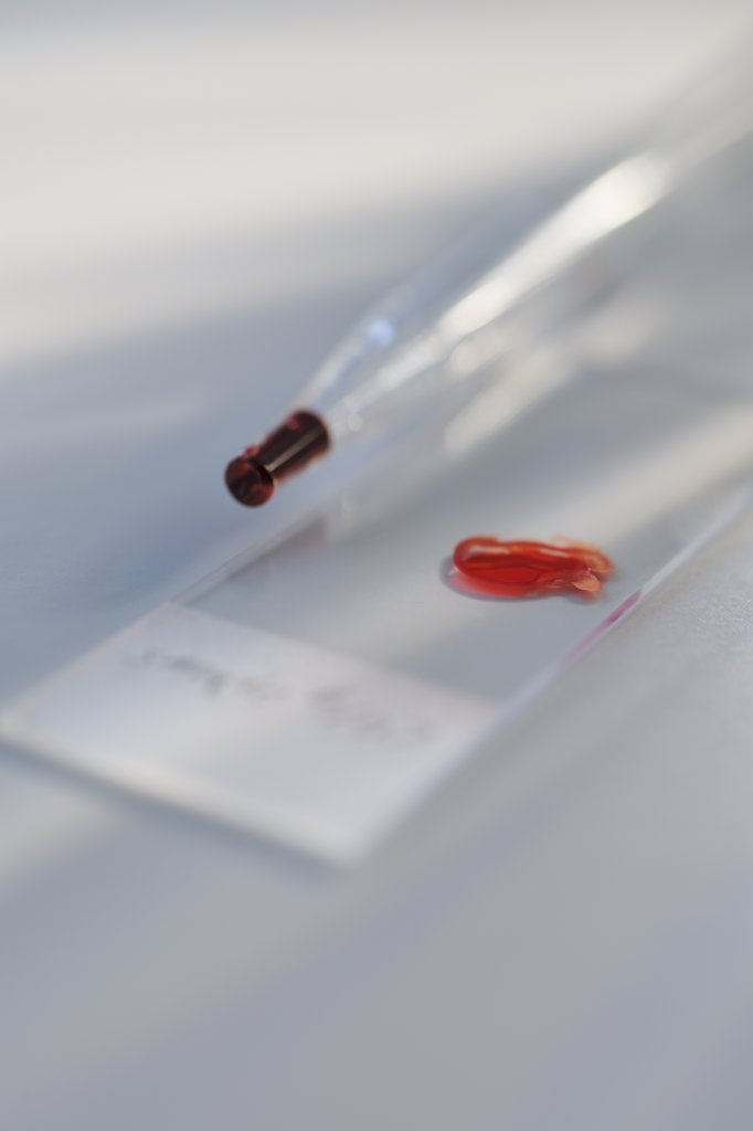 Stock Photo: 1795R-19304 Drop of blood on slide