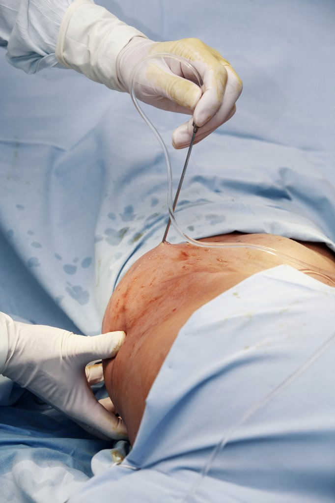 Stock Photo: 1815-43656 Surgeon performing fat loss surgery