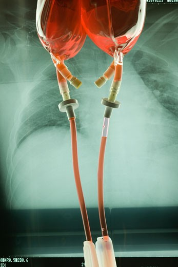 Stock Photo: 1828R-11273 IV Drip Bags and X-Ray