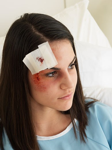 Woman in Hospital with Black Eye    : Stock Photo