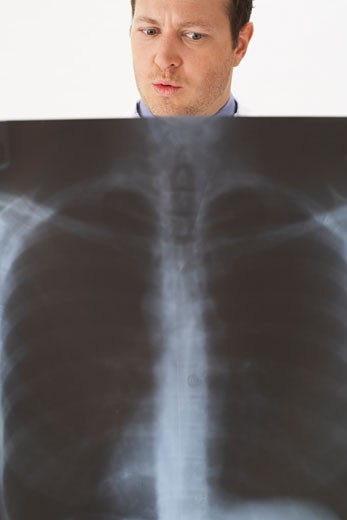 Stock Photo: 1828R-9802 Man Holding Chest X-Ray