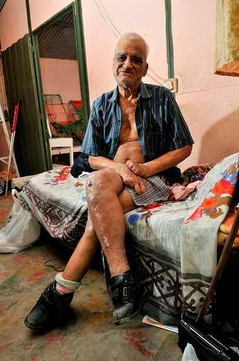 Stock Photo: 1848-132725 Leprosy patient, 78 years, with crippled hands and injuries on his legs, leprosy colony Agua de Dios, Colombia, South America