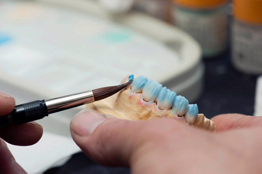 Stock Photo: 1848-595397 Ceramic crowns are colored