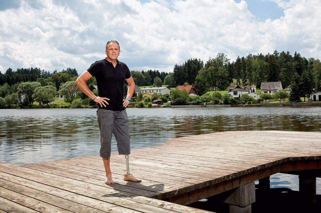 Man with a prosthetic leg standing on a jetty : Stock Photo