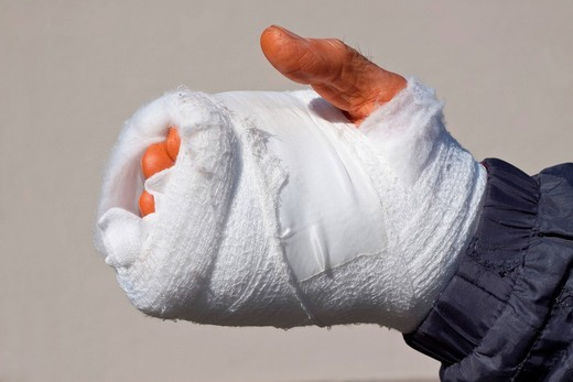Recently operated hand, bandaged after an accident at work, skin reddish_orange due to disinfectant : Stock Photo