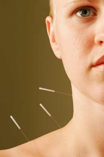 Women receiving acupuncture treatment : Stock Photo
