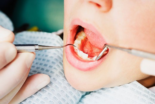 Stock Photo: 1889R-3494 Treatment at the dentist