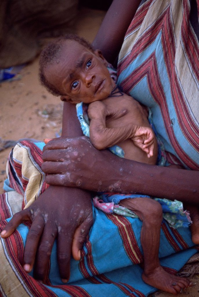Stock Photo: 1890-31279 Emaciated baby in refugee camp in 1992, Mogadishu, Somalia, Africa