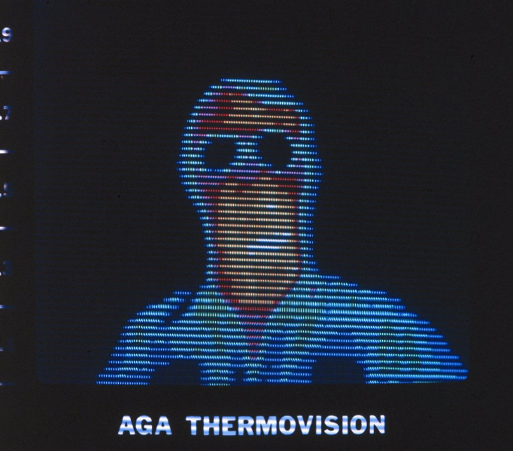 Thermal image of a person with glasses, c 1980s. : Stock Photo