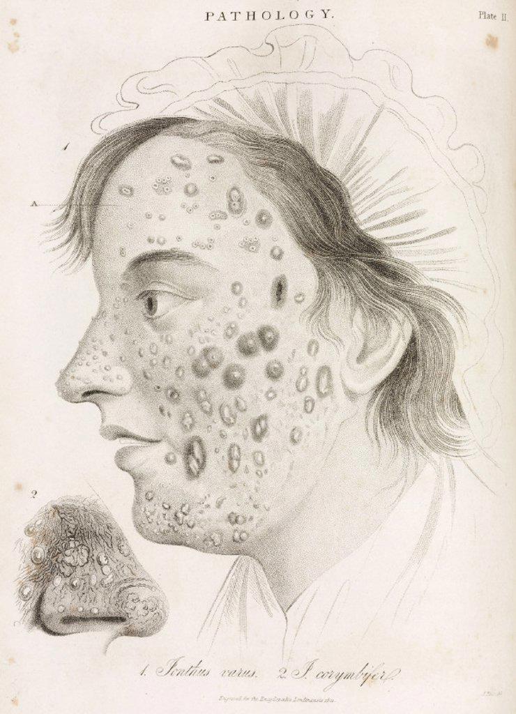 Stock Photo: 1895-32601 Two types of skin disease, 1822.