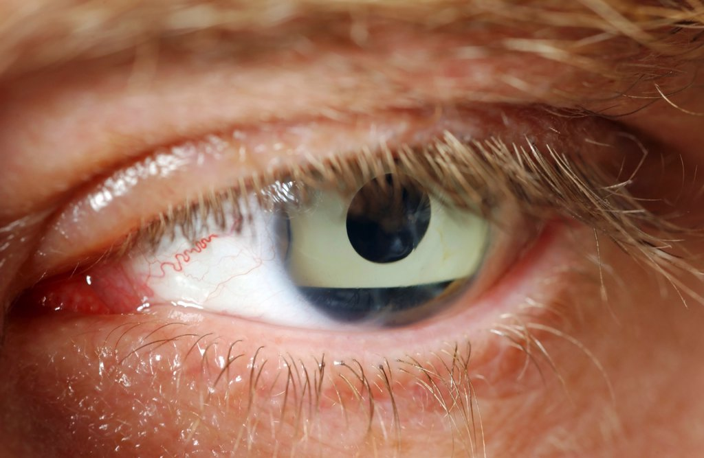 Stock Photo: 1899-66303 Close up of human eye with corneal implant