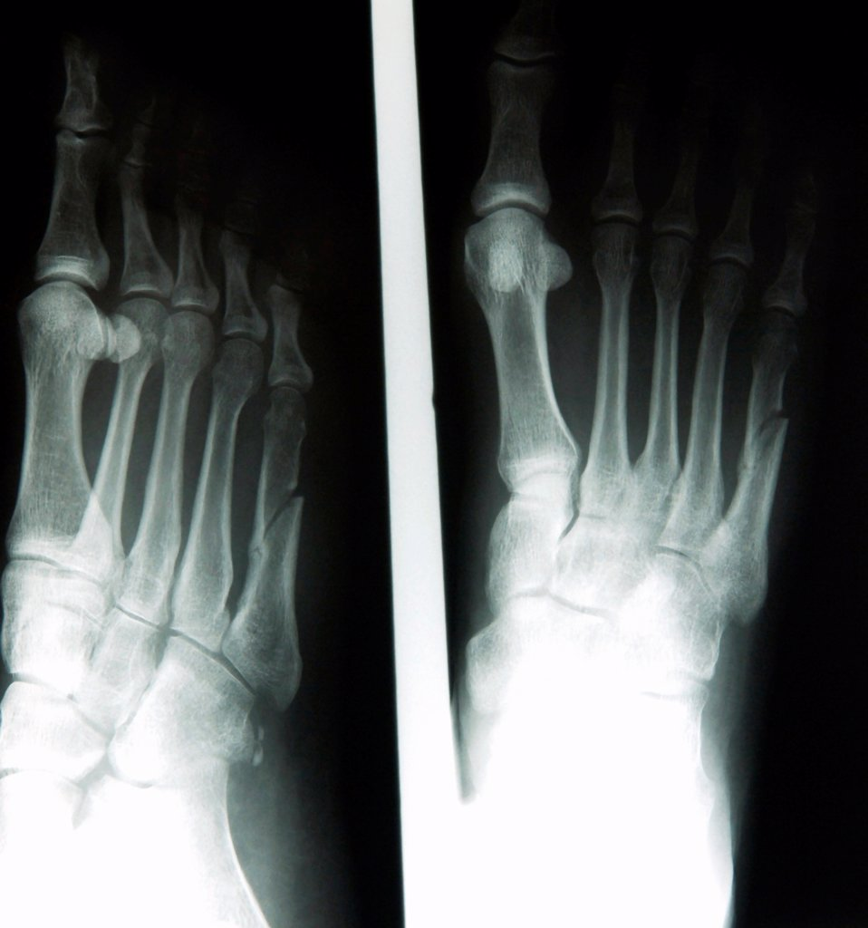 Stock Photo: 1899-66324 X-ray image of female foot