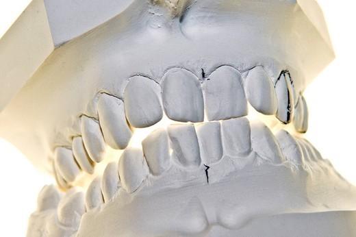 dental mold : Stock Photo