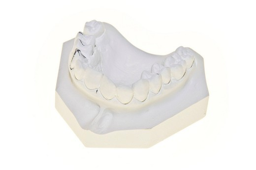 Stock Photo: 3153-731138 dental mold