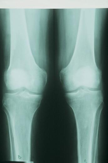 x-rays, arthrosis, knee : Stock Photo