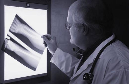 Doctor examining x-ray : Stock Photo