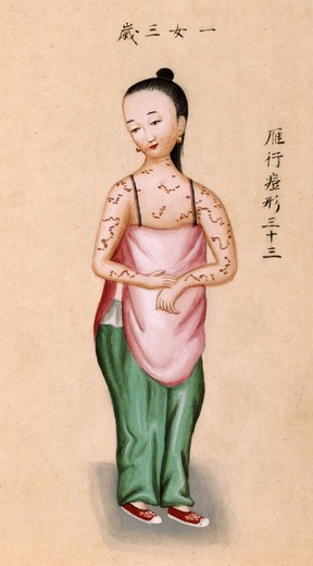 Young Chinese girl with smallpox, illustration from 'Notes on Diverse Eruptions, ' 1786. : Stock Photo