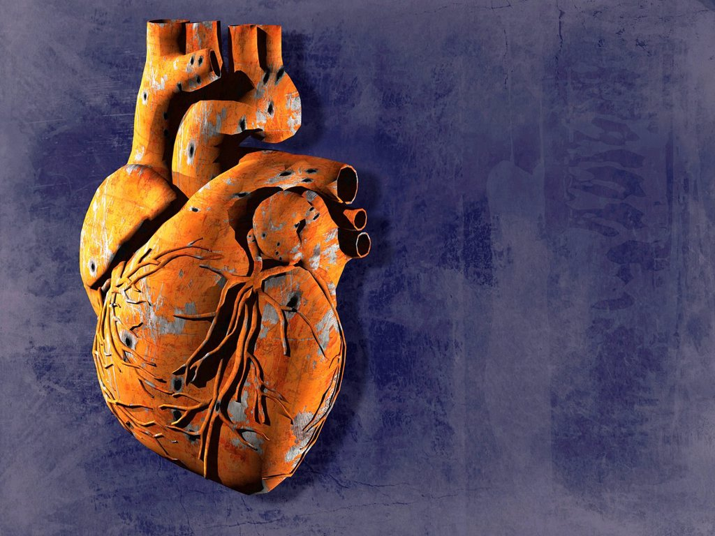 Stock Photo: 4128R-13399 Heart disease, conceptual computer artwork.