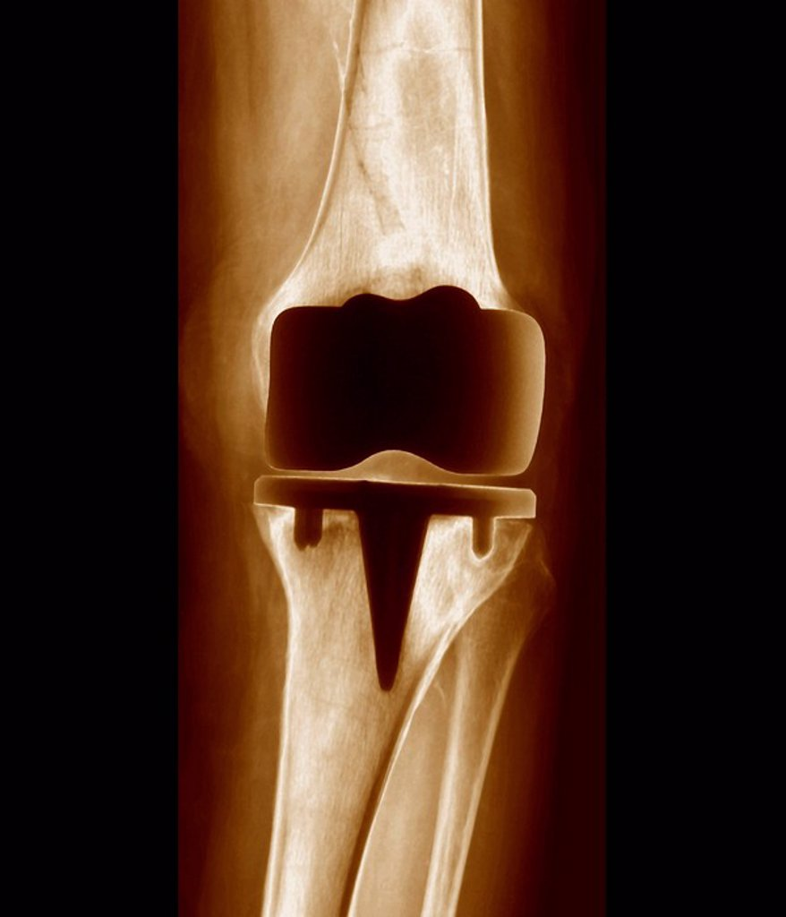 Stock Photo: 4128R-1387 Prosthetic knee joint, X_ray