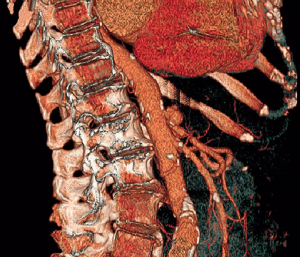 Abdominal aorta and spine. Coloured three_dimensional computed tomography CT scan of a side view of a healthy abdomen. The spine is at left and part of the ribcage is at top right. The aorta, the body´s main artery, is running down centre. : Stock Photo