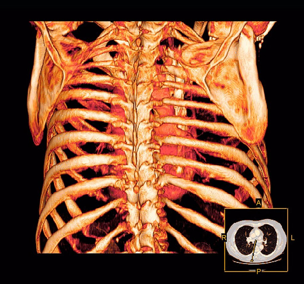 Stock Photo: 4128R-14009 Rib cage. Coloured three_dimensional computed tomography CT scan of a posterior view of a healthy rib cage and heart.