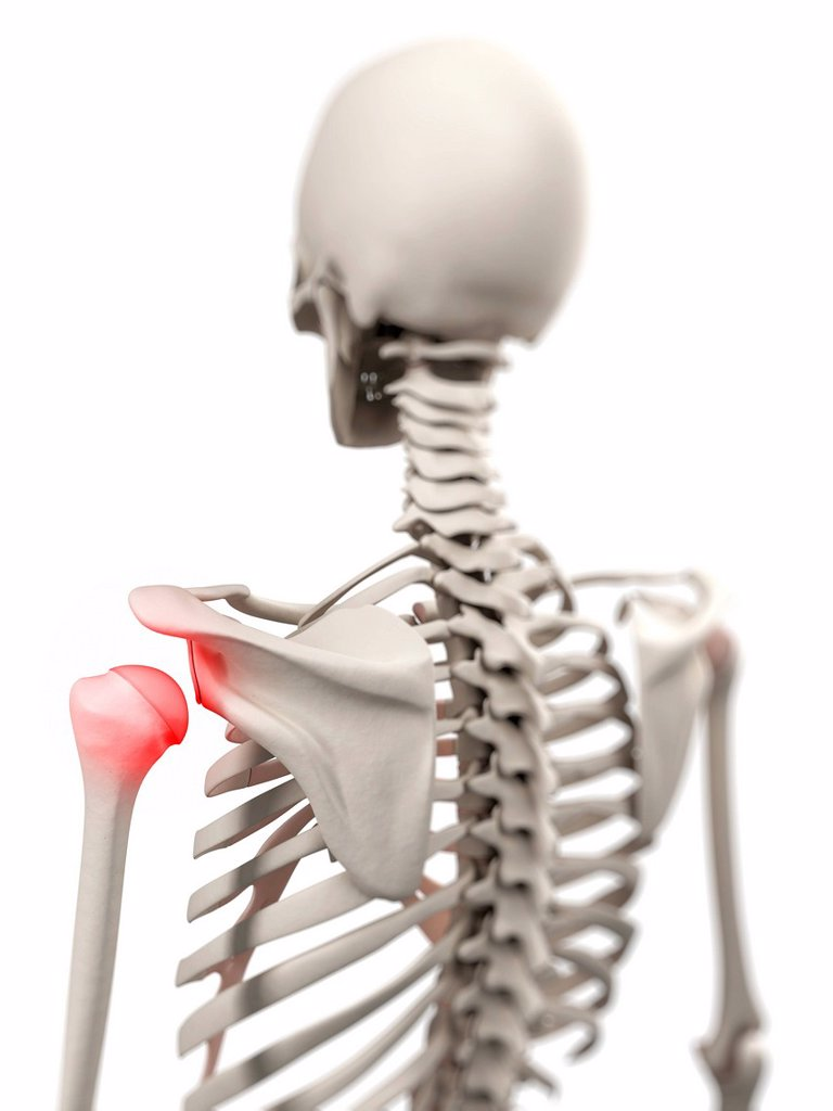 Shoulder pain, conceptual computer artwork. : Stock Photo