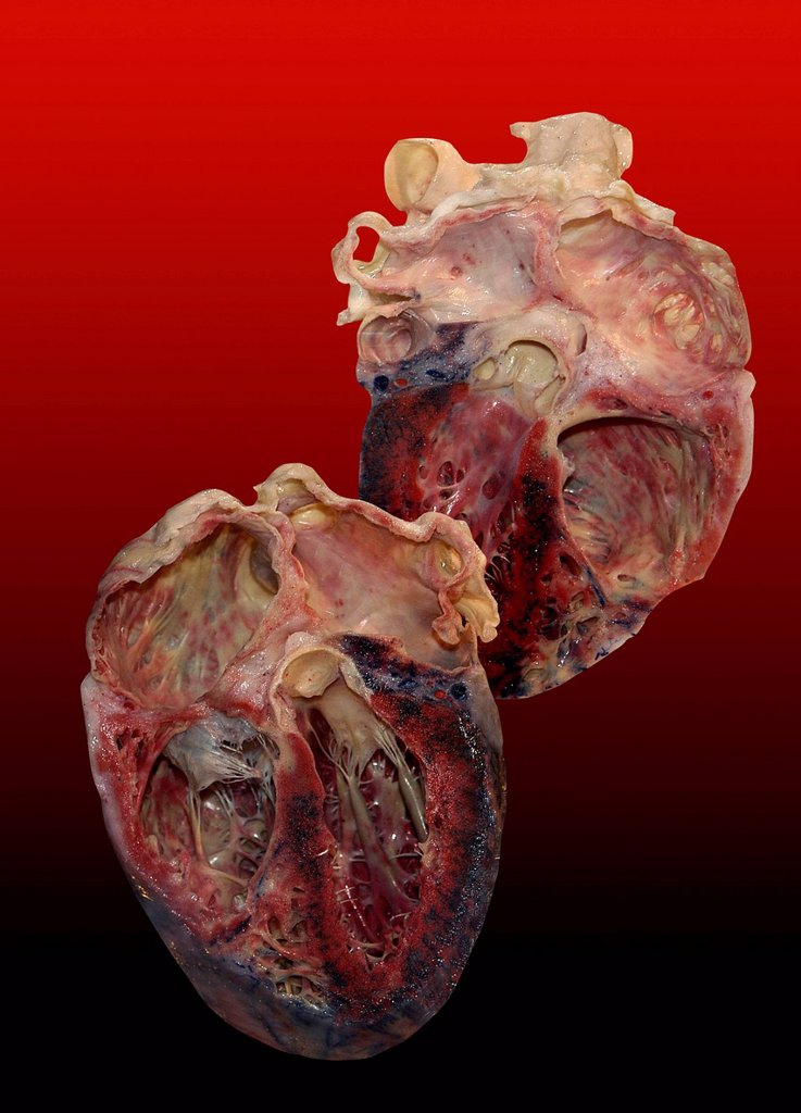Stock Photo: 4128R-14943 Dissected human heart.