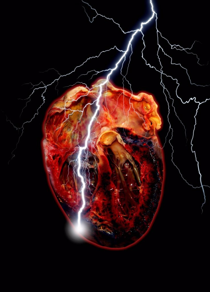 Heart attack, conceptual computer artwork. : Stock Photo