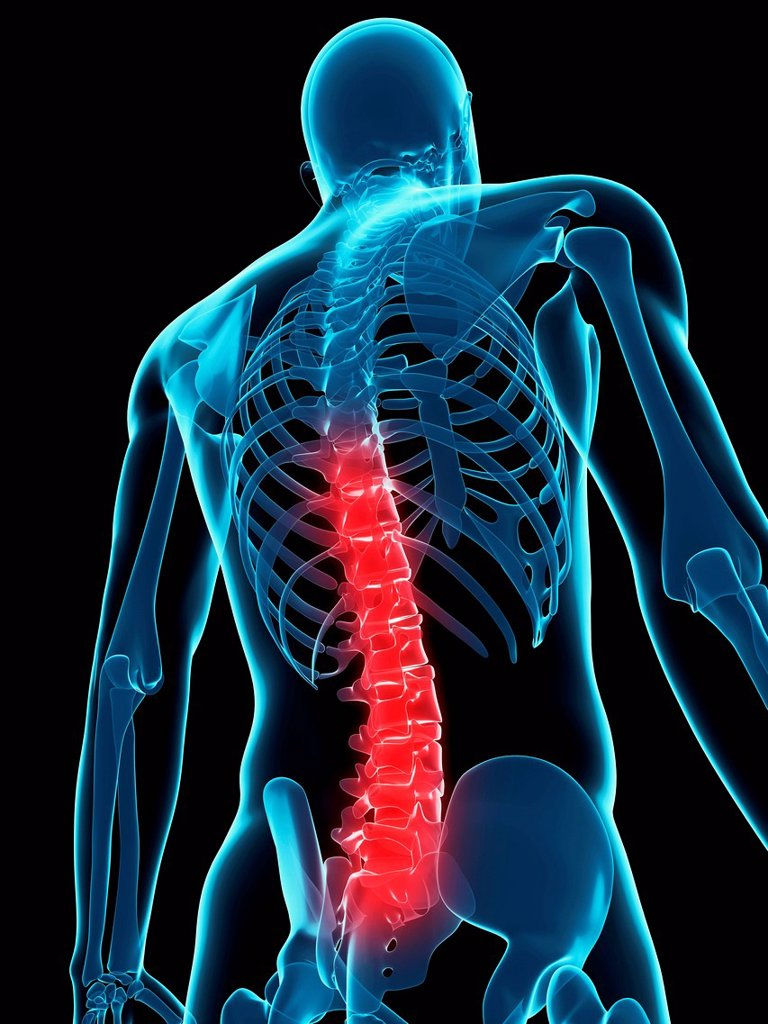 Back pain, conceptual computer artwork. : Stock Photo