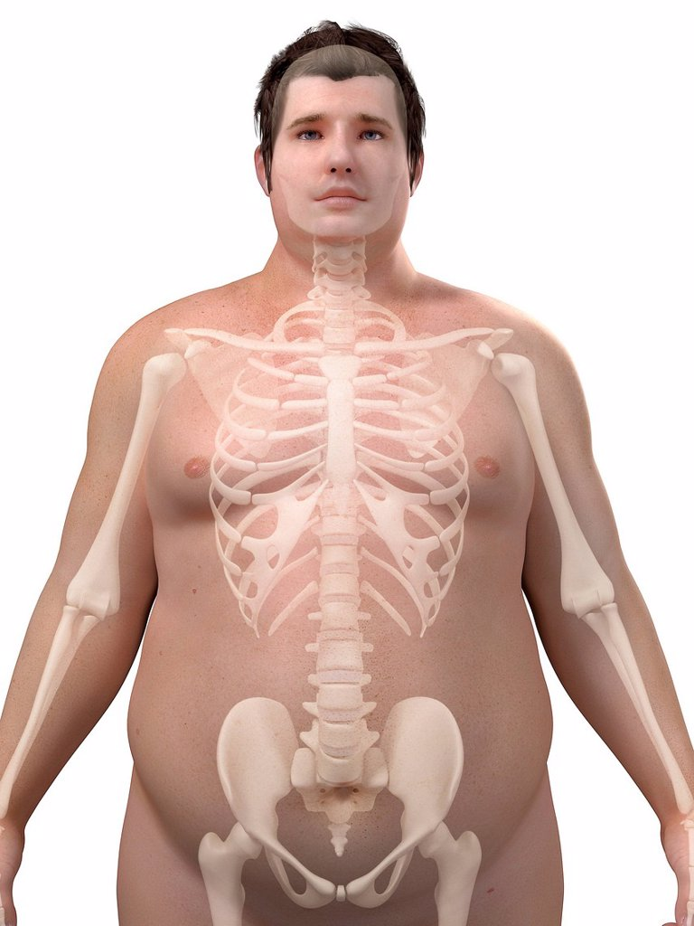 Stock Photo: 4128R-15977 Obese man´s skeleton, computer artwork.