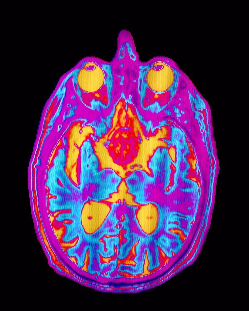 Stock Photo: 4128R-1857 Coloured MRI brain scan: pituitary adenoma