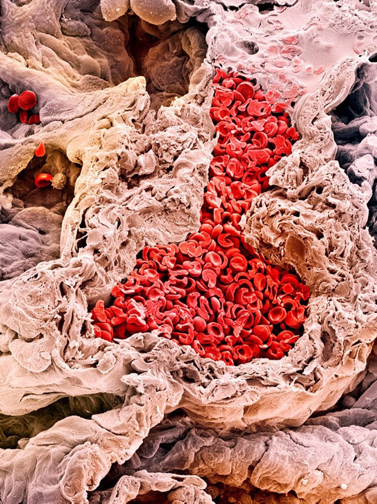 Stock Photo: 4128R-2008 Lung blood vessel, SEM