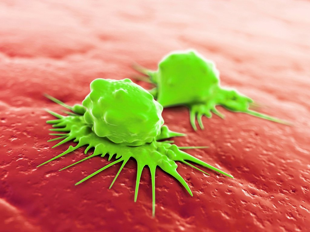 Cancer cells dividing, artwork : Stock Photo
