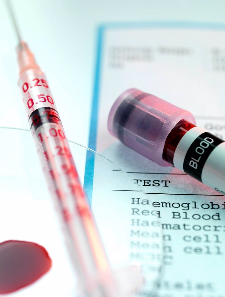 Blood test : Stock Photo