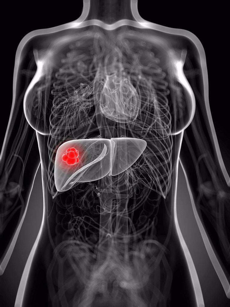Liver cancer, artwork : Stock Photo