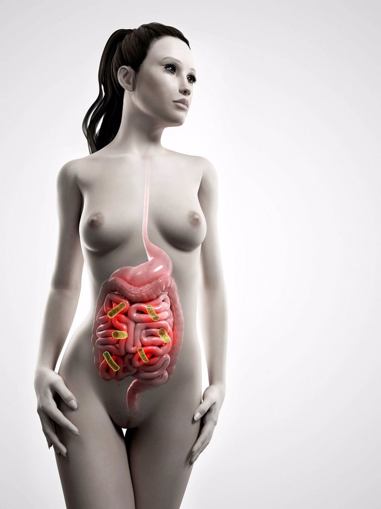 Bacterial intestinal infection, artwork : Stock Photo