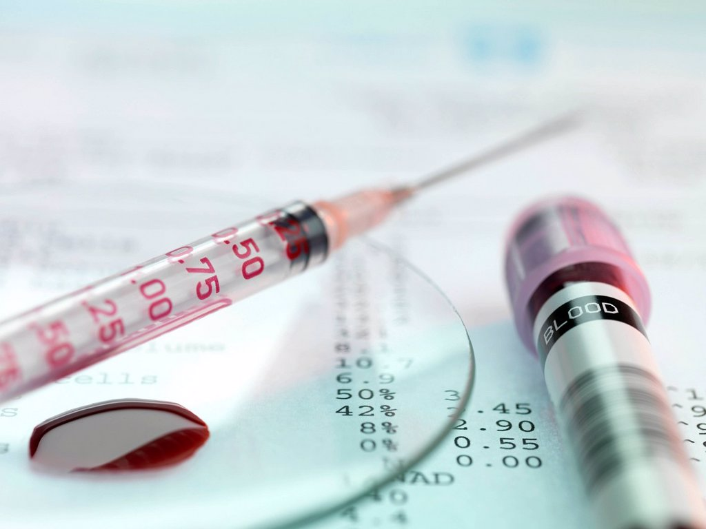 Stock Photo: 4128R-21030 Blood test