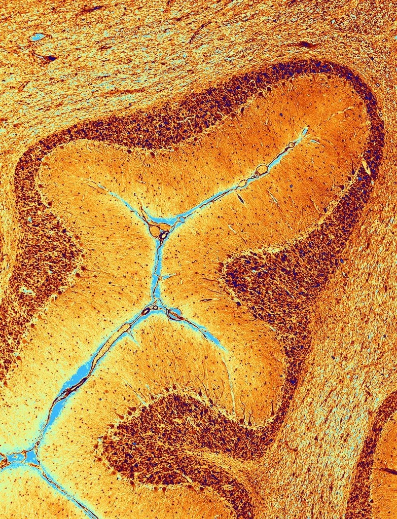 Stock Photo: 4128R-21155 Cerebellum tissue, light micrograph
