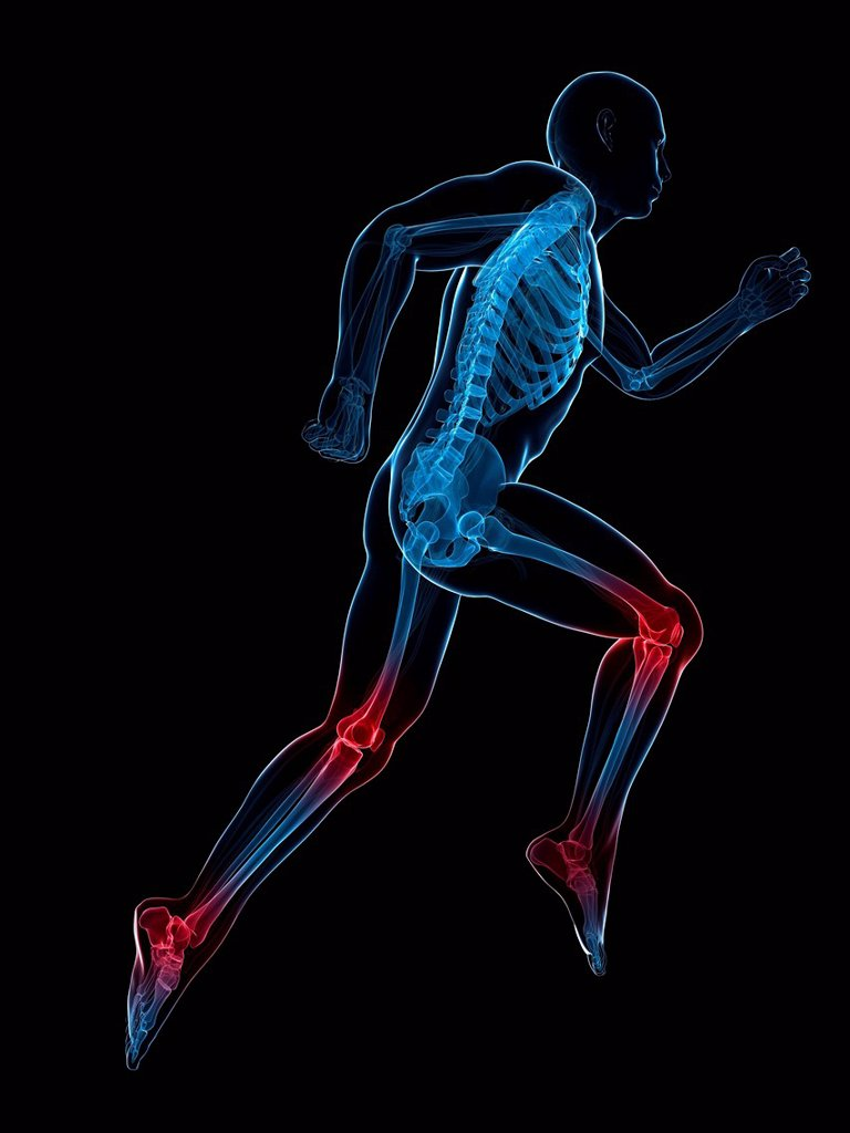 Running injuries, conceptual computer artwork. : Stock Photo