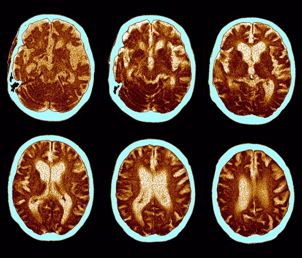 Brain with Alzheimer´s disease, CT scan : Stock Photo