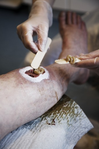 Stock Photo: 4176-24611 Image of a chronic leg wound on a 60 year old man