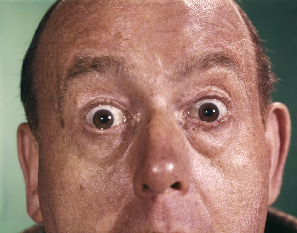1960S Close-Up Detail Of Florid Man Face With Eyes Open Wide And Staring : Stock Photo