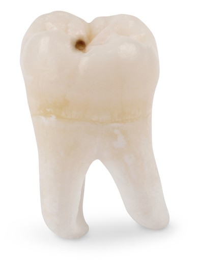 Human wisdom tooth isolated on white with a clipping path : Stock Photo