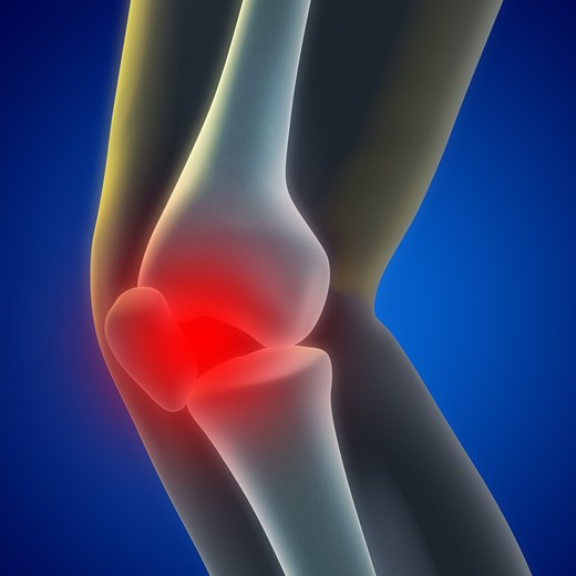 Stock Photo: 4193R-964 An illustration of a knee xray showing the injury.
