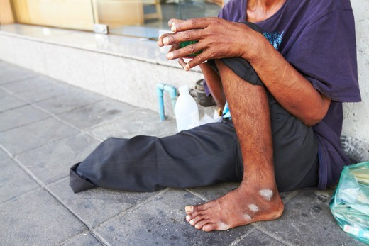 Cropped view of a one-legged beggar on the streets of Asia : Stock Photo