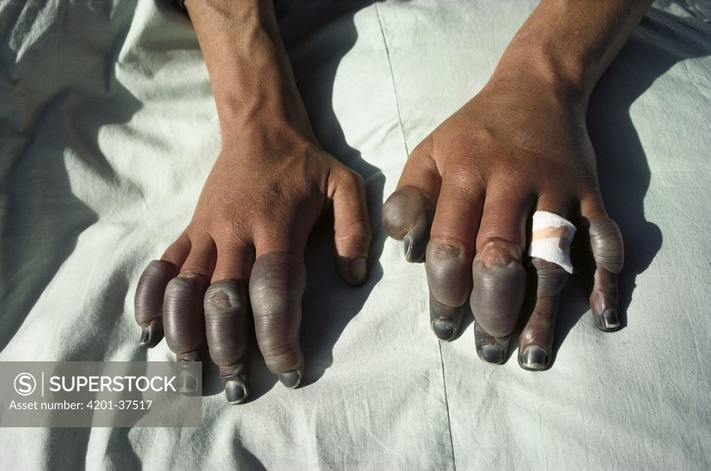 Stock Photo: 4201-37517 Andy Henderson's frostbitten fingers, photographed in Lhasa, one week after descending the North Face of Mt Everest, Tibet