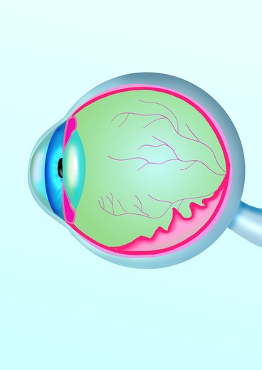 Retina detachment : Stock Photo